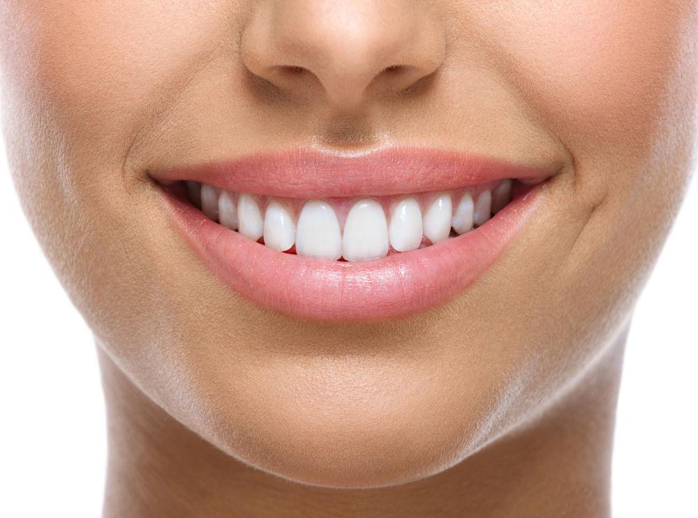Teeth Whitening Southborough MA