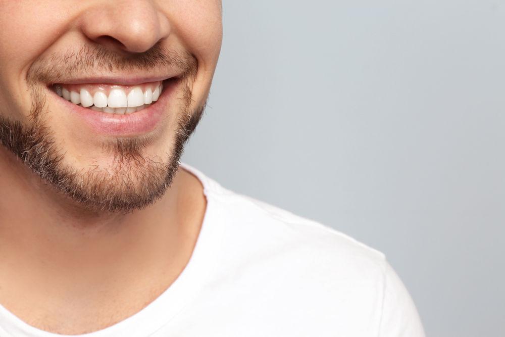 Dental Bonding Southborough MA